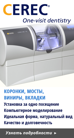 CEREC CAD-CAM Treatements in Cyprus