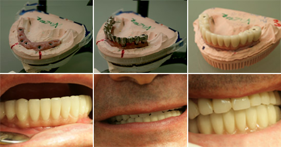 Implants by Dental Clinic Vident